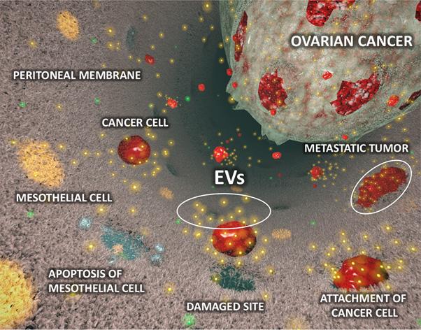 ovarian cancer peritoneal dissemination