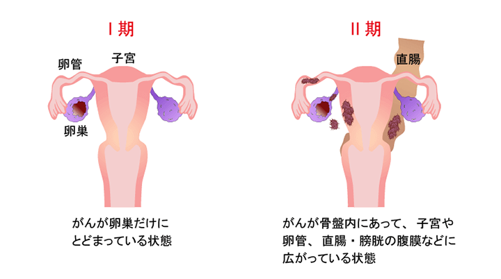 卵巣 腫瘍 手術