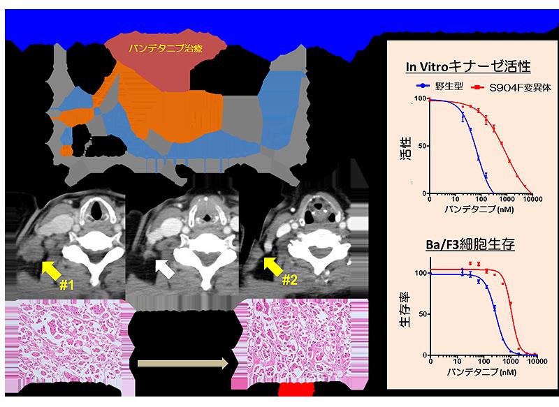 バンデタニブ治療への耐性化をもたらすRET二次変異の固定