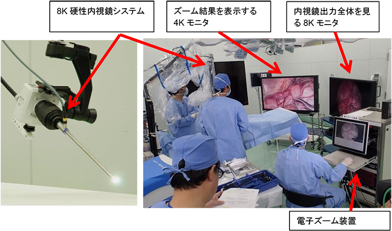 試作した8K硬性内視鏡手術システム