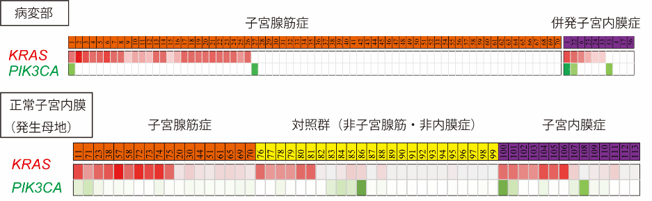 子宮腺筋症のゲノム解析図2