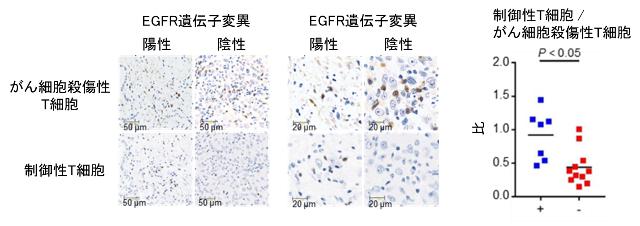 図2. EGFR遺伝子変異の有無による肺がん組織内の免疫細胞数の免疫染色を用いた比較検討