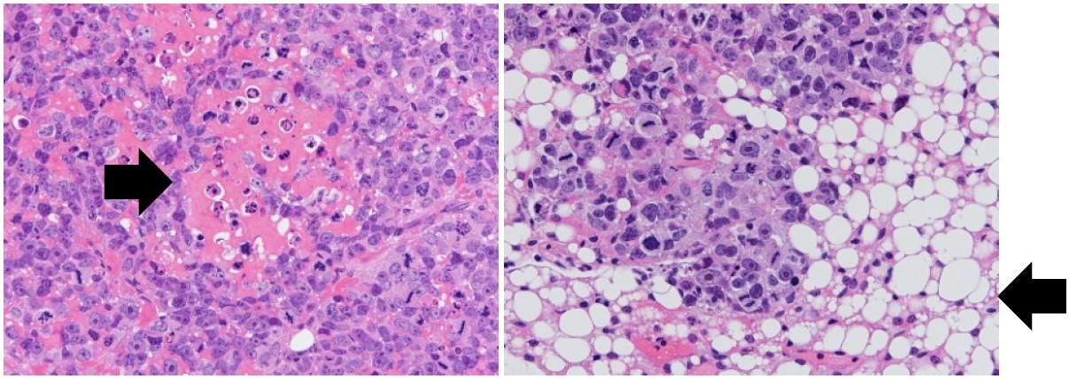 図1. 骨肉腫細胞を移植し増殖させたたマウスに NCB-0846を投与すると脂肪組織に変化