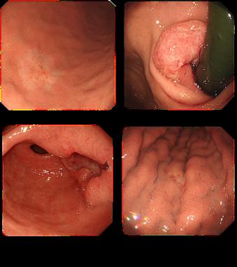 症状 胃がん 初期