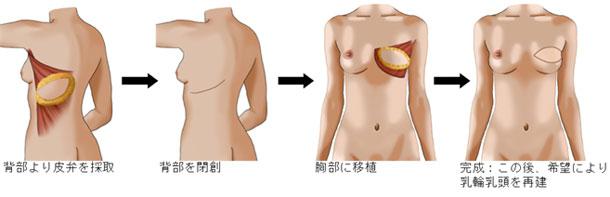 乳房再建術について | 国立がん研究センター 東病院