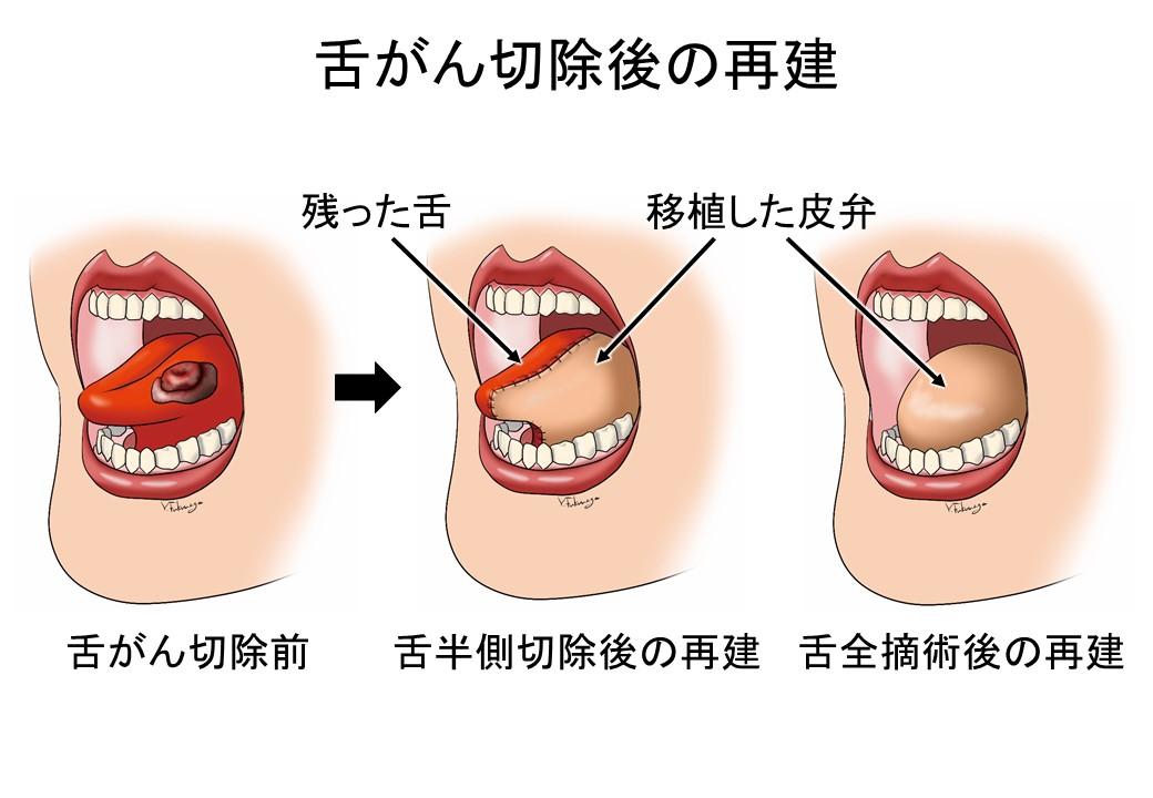 舌がん切除後の再建の図