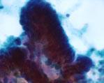 大腸腺癌細胞画像